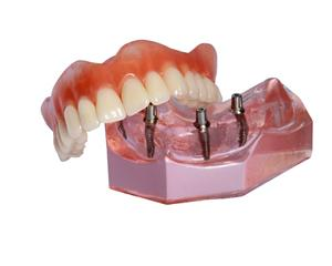 Model smile with All-on-4 dentures