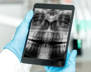 Panoramic dental x-rays on tablet computer