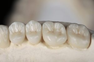 model of dental crowns on a mouth