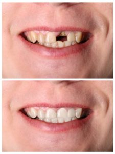 before and after picture dental crown