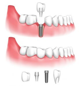 Do your smile gaps hurt your self-image? Restore your smile with beautiful dental implants from expert dentist in Milwaukee, Barry R. Franzen DDS.