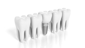 dental implant and molars