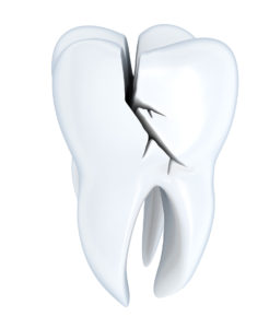 cracked tooth dental pain