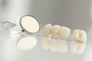 Did you know that dental crowns in Milwaukee can help restore the function and appearance of your smile?
