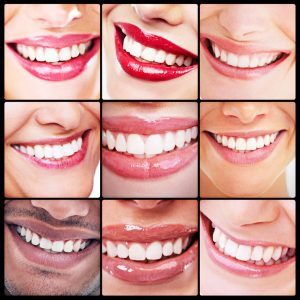 Teeth whitening in Milwaukee brightens dark dental stains. Dr. Barry Franzen uses in-office treatments for safe and reliable results.