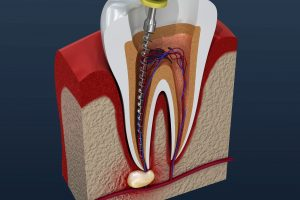 Root canals can prevent tooth extractions in Milwaukee.